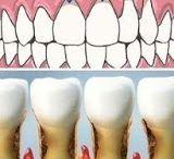 Zähne - Teeth - tooth