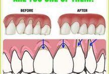 Other (teeth)