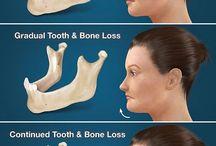 Imagens alteração facial pela perda de dentes