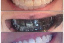 Albirea naturală a dinților