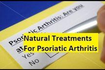 Psoriatic Arthritis Treatment Options