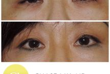 Ptosis surgery / Ptosis surgery is one of the most challenging surgeries that you can perform on the eyelids. It is particularly challenging in the Asian eyelid where you're both correcting the position of the lid while trying to maintain a natural looking eyelid crease.