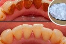 Zubny kamen