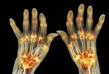 artritida liečba