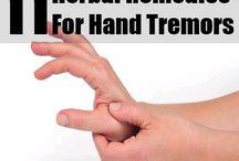 hand tremor