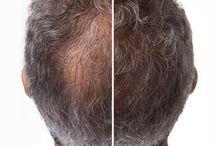 para la caída del cabello