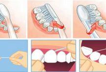 Dentaire : elimination tartre, haleine fraîche