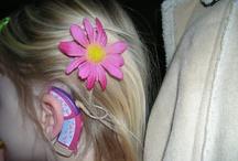 cochlear divat