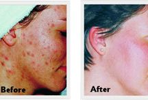 Clinogen / Leading suppliers to the dermatology and healthcare industry, Clinogen offer a wide range of ground breaking solutions that help improve the appearance of the skin. Using the latest innovations in Oxygen Therapy, Sound Energy and Dry Wound Healing, Clinogen can help treat, acne, scarring, post acne pigmentation and sun damaged skin as well as remove unwanted hair and treat wounds, speeding up the healing process and minimizing scarring.