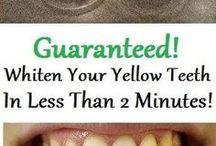 Teeth whitening instant