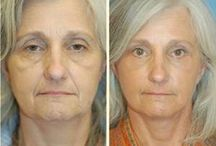 Remove Face Lines And Lift Droopy Face Skin Using Face Revival Workouts / Face Aerobics Gymnastics For Deleting Wrinkles On The Face And Neck