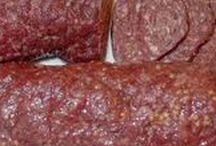 HOMEMADE SUMMER SAUSAGE RECIPES