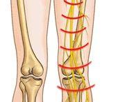 My Journey through Sciatic nerve pain