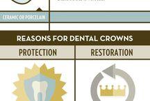 UDental Crowns