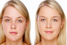 How to Eliminate Acne Naturally And Fast Stone