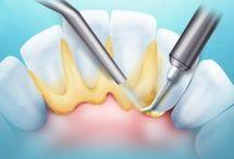 Зубы и импланты