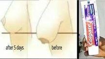 diş macunu etkisi
