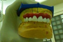 case of upper front teeth crowning