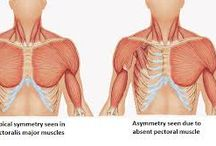 Poland Syndrome | Facts / Snippets of info we've picked up about Poland Syndrome