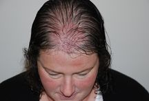 Female hair transplant / #hairloss #femalehairloss #hairtransplant #HarleyStreetHairClinic
