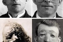 Vintage medical procedures / thank goodness for medical addvances