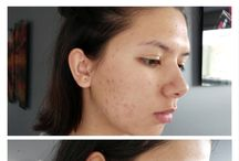 Before and After Kosmea Certified Organic Rosehip Oil