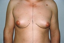 Gynecomastia/ Male breast reduction in Romania / Gynecomastia. Cosmetic surgery, aesthetic surgery, plastic surgery, beauty. Medical tourism in Romania, medical tourism in India, medical tourism in Turkey. CONTACT: office@intermedline.com ; Phone: 1 518 620 42 25