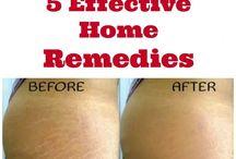 Stretch mark remedies