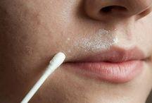 come eliminare i baffetti dal viso in maniera naturale