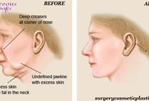 Face Lift Surgery / Plastic Surgery Face Lift is a medical Procedure requiring local anesthetic and a Scalpel.