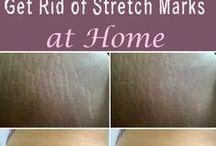Stretch marks Removing