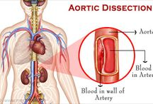 Aortic Aneurysm / The aorta is a major blood vessel carrying blood from the heart to the rest of the body. As the heart pumps blood, it first enters the aorta and is then delivered via connecting vessels to the rest of the body.