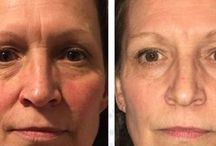 Non-Surgical Facelift Gained Using Face Yoga Gymnastics / Biological Facelift: Facial Yoga Treatments Are Excellent For Turning Back The Clock