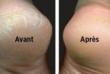 Le bicarbonate de soude pour traiter les pieds secs et fendillés. Adieu pieds secs et callosité avec le bicarbonate. Un remède naturel pour des pieds lisses