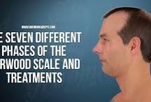 Use Ketoconazole for Hair Loss Efficiently - Grooming Adepts