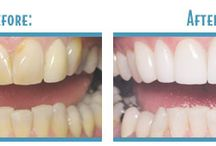 Smile with Pride! / Images of some of the cosmetic and restorative work we've done in our Arlington dental office. All metal-free & biocompatible!