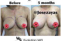 Breast Augmentation/ Lift