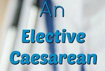 Motherhood: elective caesarean