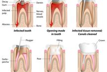 Dental Root Canal in San Diego / A root canal is a treatment used to repair and save a tooth that is badly decayed or becomes infected. At Extreme Smile Makeover in San Diego California Dr. Ali Shojania provides Dental Root Canal for patients. http://www.extremesmilemakeover.com/ Free Consultation (888) 673-2144
