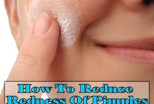 How to Reduce Pimple Redness / How to Reduce Pimple Redness