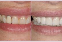 Peck Smiles / Photos of my favorite reconstructive dentistry cases.