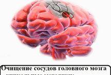 очищение сосудов голов мозга