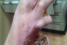 Ziektes