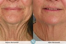 Optimera and Nerium results / Before and after pictures from Nerium ...