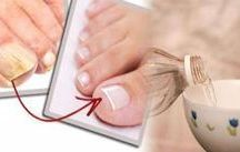 Hongos uñas