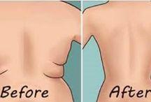 Gordura nas costas