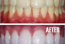 Teeth whitning