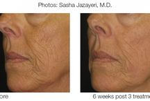 How to Remove Facial folds, wrinkles lines & scars