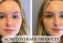 Acne Coverage / The best ways to cover up your acne here! www.prettylittleskin.com