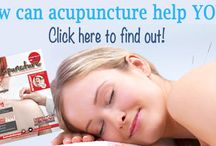 Benefits Of Acupuncture 30045 Treatments